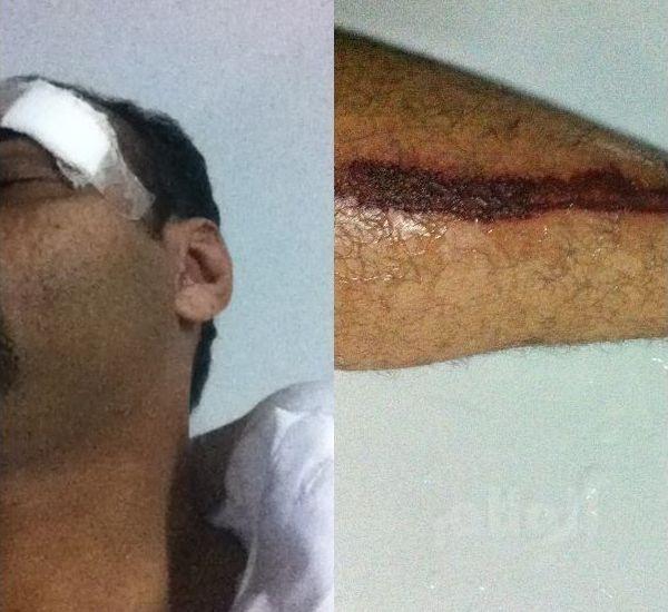 شاب يتسبب في إصابة رجل أمن ويلحق أضراراً بدورية أمن طرق