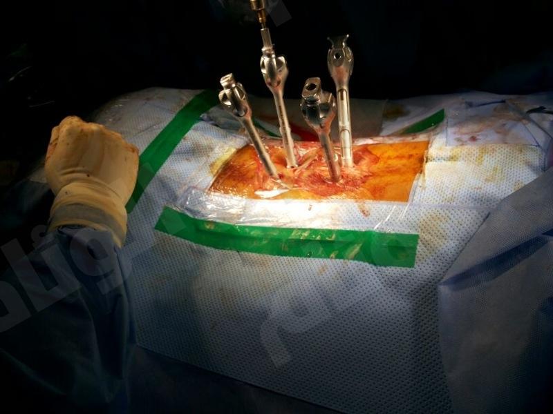 جراحة 4