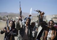 الحوثيون يحتجزون مساعدات إغاثية خاصة بمستشفيات إب