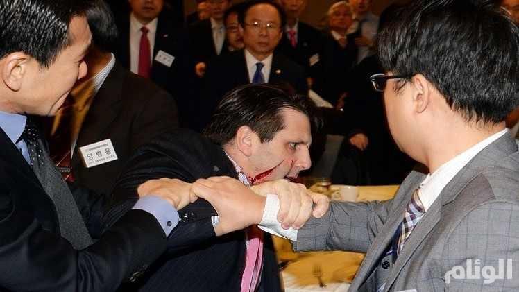 """بعد تعرضه لهجوم بسكين في وجهه .. كوريا الشمالية تحذر السفير الأمريكي في سول من """"هجوم أكبر"""""""