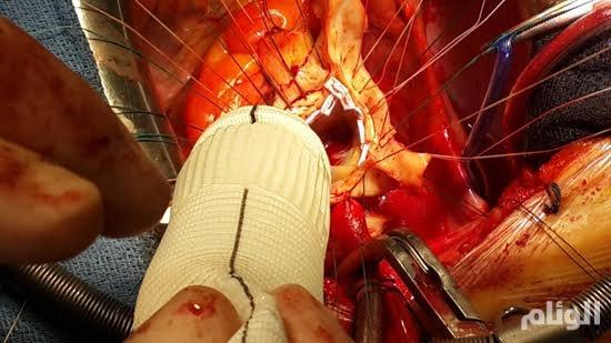إنقاذ طبيب من الموت قبل انفجار «قلبه» في القصيم