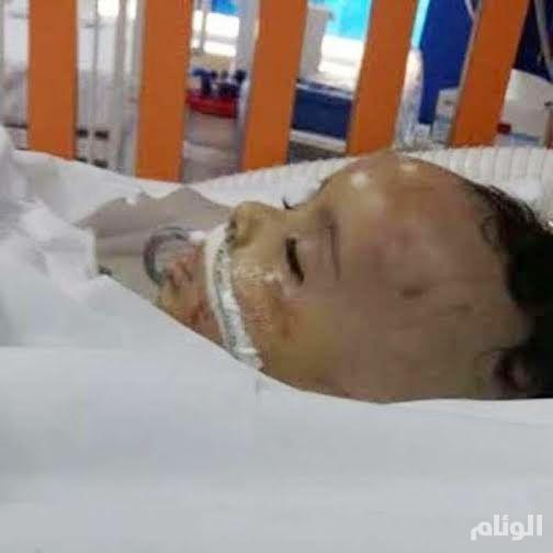ضحية حقنة «العارضة» إياد سحاري يفارق الحياة.. ووعود «صحة جازان» لم تنفذ
