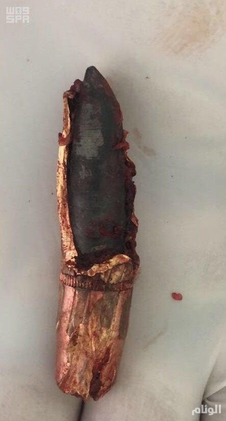 مستشفى الملك خالد بنجران ينقذ حياة شاب يمني اخترقت صدره رصاصة حوثية