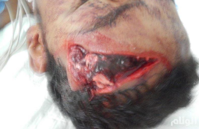 بالصور.. نجاح عملية ترميم جمجمة مواطن تعرضت لكسور بليغة في تبوك