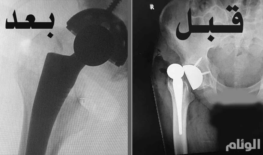 جراحة ناجحة بمستشفى بريدة المركزي لتركيب مفصل صناعي