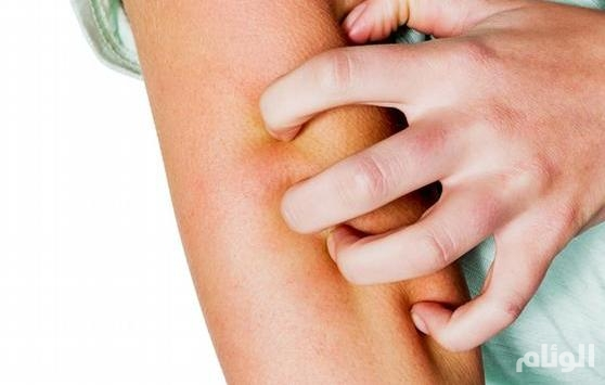 استشاري امراض جلدية يكشف اسباب