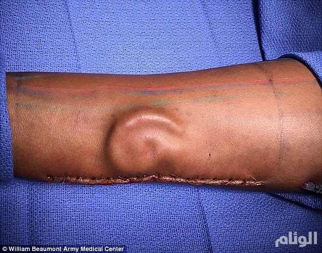 في جراحة غريبة .. فتاة تسمع من ذراعها