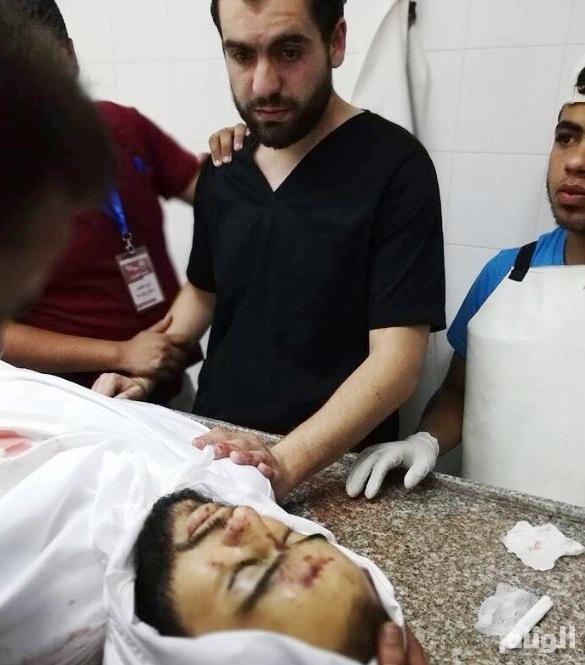 صورة مؤلمة لطبيب في غزة يفاجأ بجثة أخيه