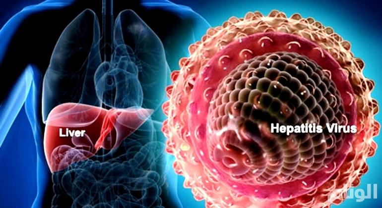 الصحة: علاج 750 مصابًا بـ«فيروس الالتهاب الكبدي ج»