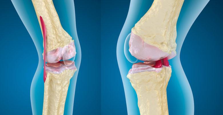 جراحة العظام السعودية تكشف حقيقة تقنية جديدة لعمليات استبدال مفصل الركبة