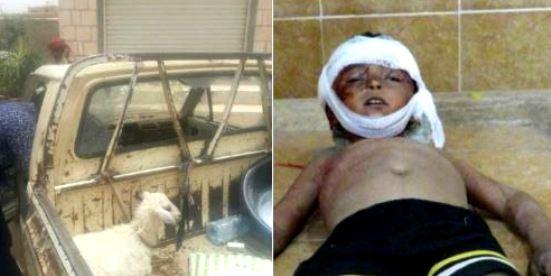 جريمة مروعة: ميليشيا الحوثي تقتل طفلاً برصاصة في رأسه