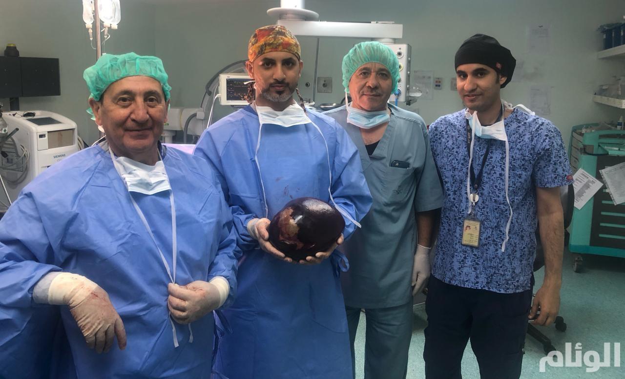 فريق طبي بمستشفى الثغر يعيد الابتسامة لثلاثينية تعاني من متلازمة هيلب