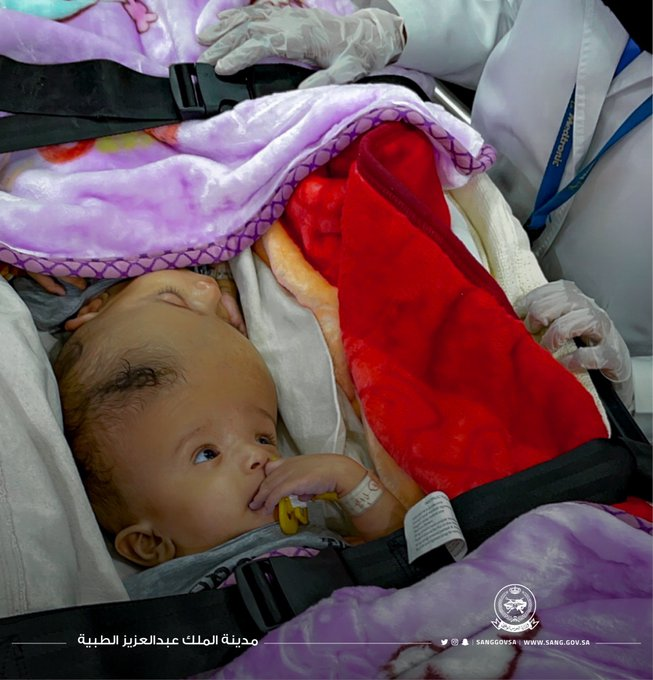 %D8%AA3 - الحرس الوطني: وصول التوأم السيامي اليمني يوسف وياسين لإجراء الفحوصات للتبين من إمكانية فصلهما جراحيا